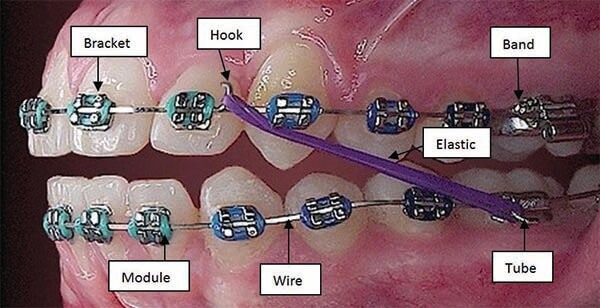 Model with braces illustrating the components of braces