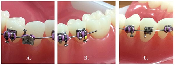 Braces with broken components