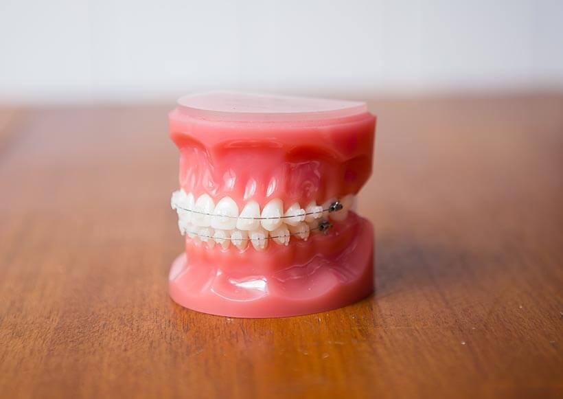 Ceramic (clear) braces on model teeth