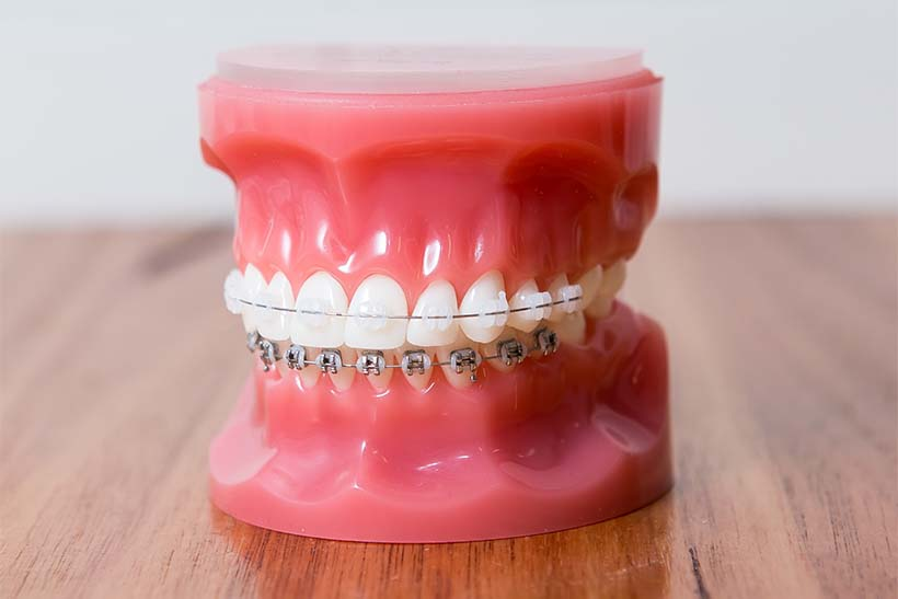 Model teeth with braces
