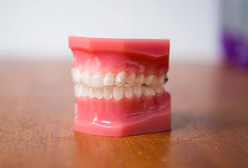 Invisalign on model teeth