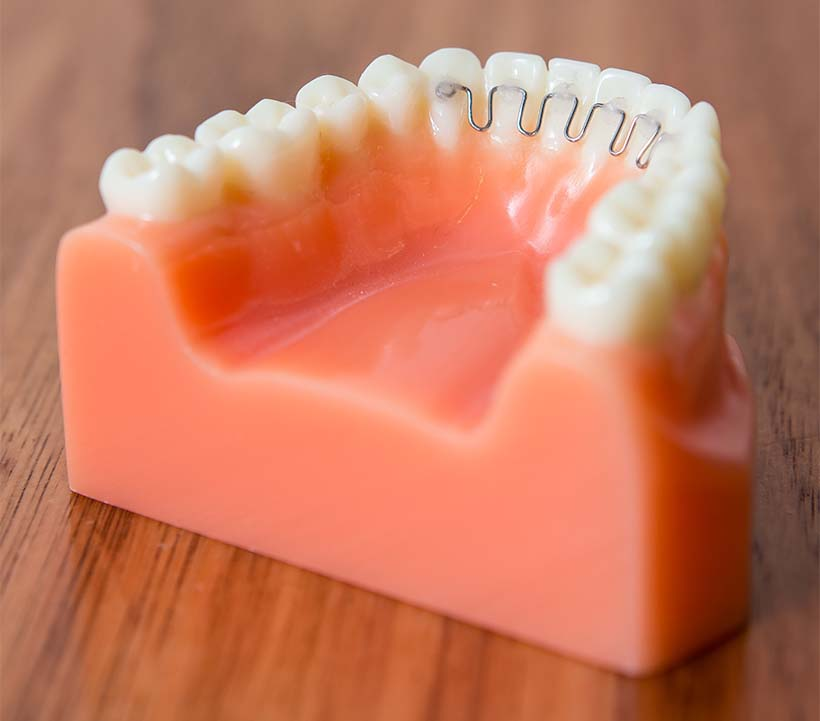 Model teeth with lower hygienic retainer