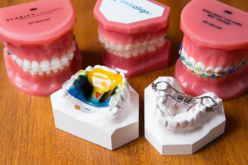 Model teeth demonstrating orthodontic treatments