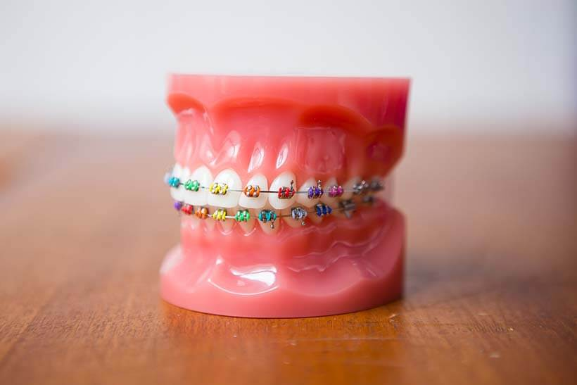 Stainless steel (metal) braces on model teeth